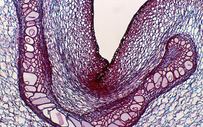 органика под микроскопом, клетки, микроскоп, предметное стекло, увеличение, фото, медицина, исследования